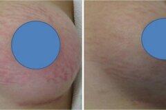 Лечение кожи кремами и мазями