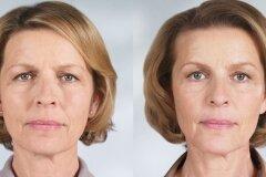 Эффект домашних масок