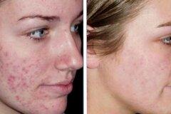 Глубокое очищение кожи и ее питание