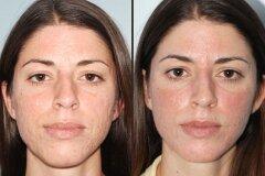 Лечение дома масками и скрабами