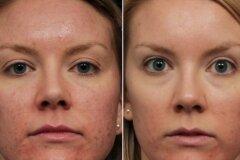 Чистка лица и макияж