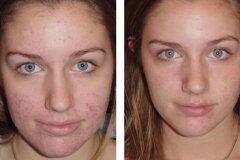 Косметика на лице