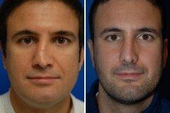 Выравнивание носовой перегородки