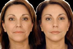 Применение рисовых масок регулярно 5 лет
