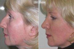 Коррекция носа с горбинкой