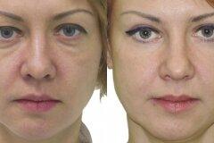 Увеличение разреза глаз