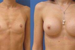 Увеличение груди до 3-го размера