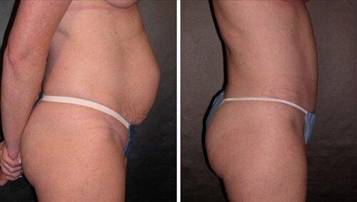 живот до и после операции