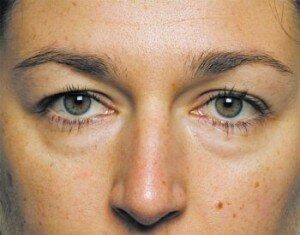 как убрать мешки под глазами у косметолога фото