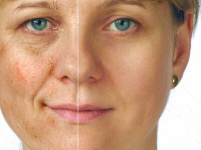 очищение кожи химическим путем