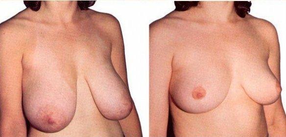 техника подтяжки груди