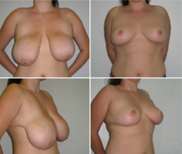 Уменьшение груди (редукционная маммопластика) - цены, операция, противопока