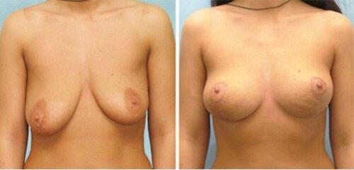 пластика груди фото до и после