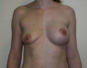 аномальная грудь