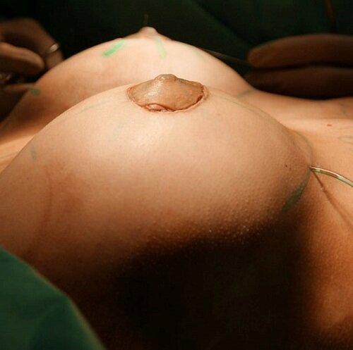 implantacia-grud.gpg