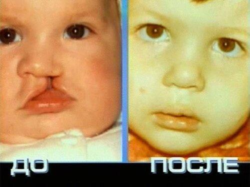 дефект на губе с рождения