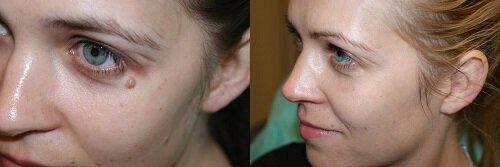 бородавки фото до и после