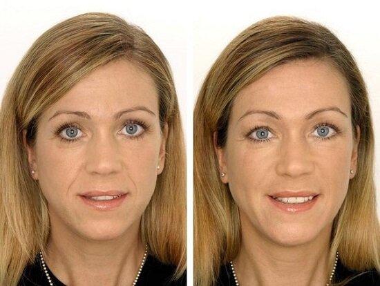 биоревитализация на лице