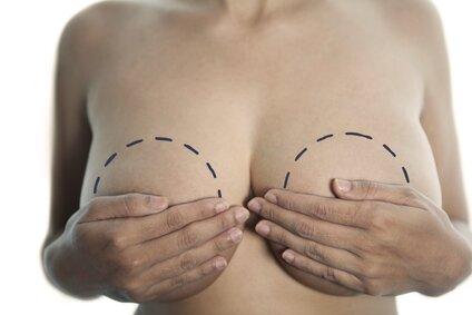 уменьшение большой груди