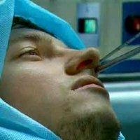 септопластика носовой перегородки