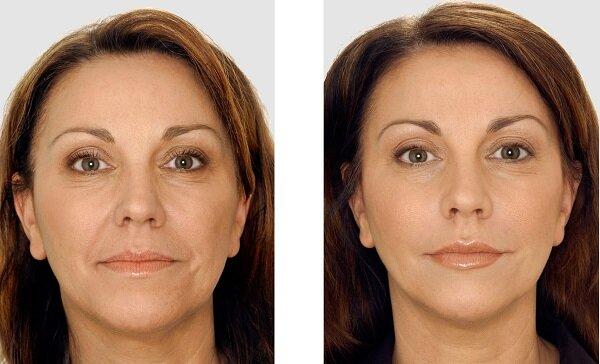 лицо женщины до и после