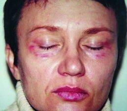 cиняки на лице после уколов