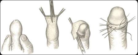 обрезание полового члена
