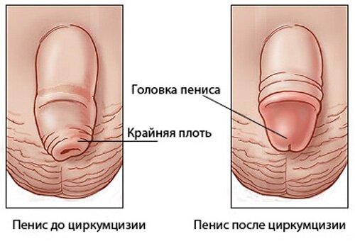 обрезание иссечение тканей члена