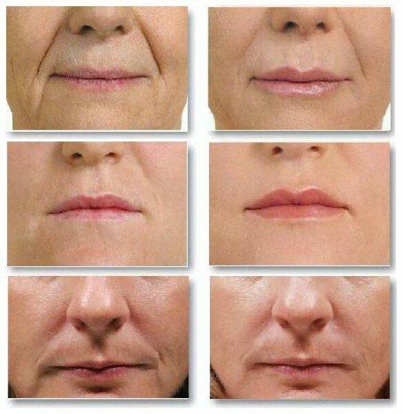 лицо до и после процедуры