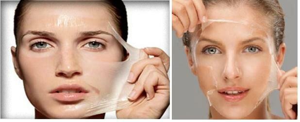 пилинг лица кислотами отмершие клетки на коже