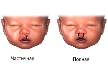 заячья губа и расщеплённое нёбо