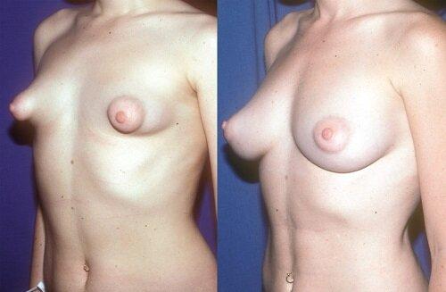 коррекция тубулярной груди