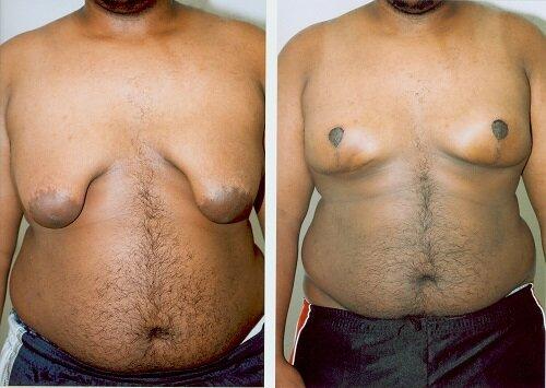деформасия груди до и после операции