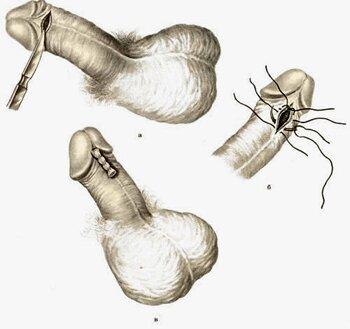 схема френулотомии полового члена