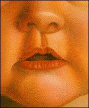 исправление заячьей губы