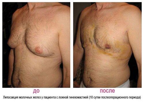 Gynecomastia-photo.jpg
