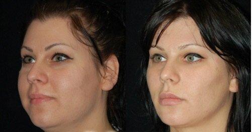 Фото до и после удаления комков Биша