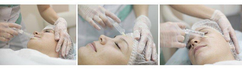 озонотерапии для лица