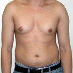 подростковая гинекомастия