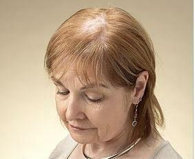нездоровые опавшие волосы