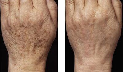 неабляционное лазерное омоложение фото до и после