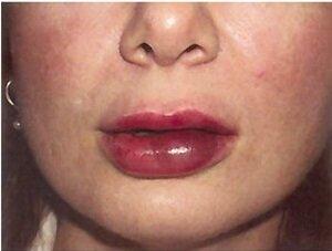 гематома на губе
