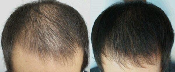 Фото «до» и «после» плазмолифтинга волос