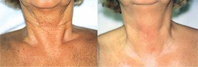 Фото до и после лазерной биоревитализации