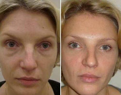 фото до и после блефаропластики нижних век