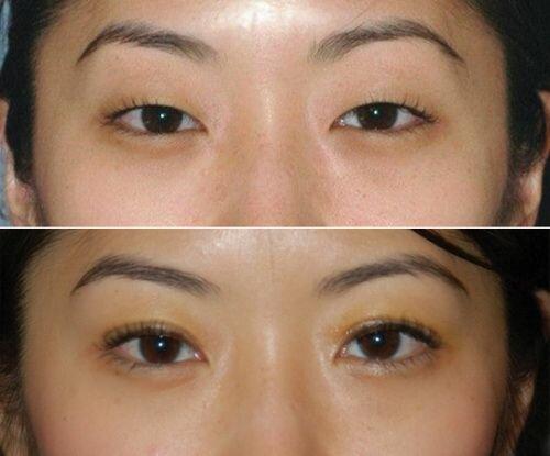 блефаропластика азиатских глаз фото до и после