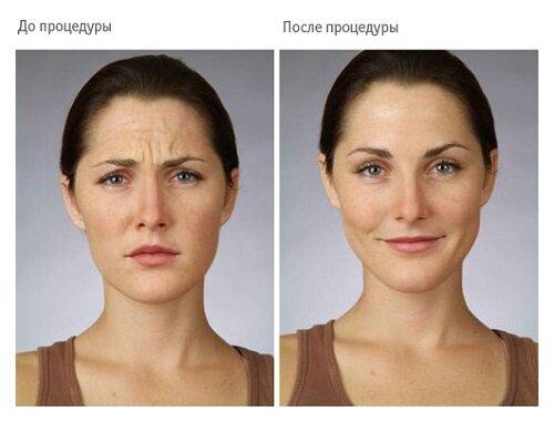 Фото до и после уколов ботокса