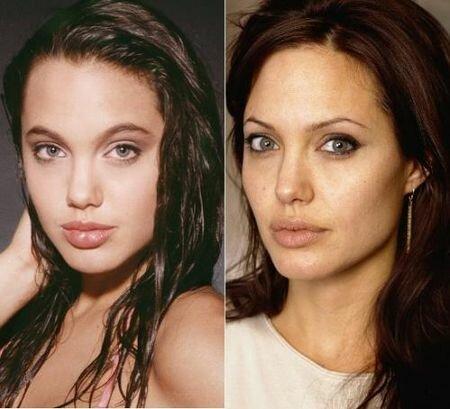 анжелина джоли фото до и после пластики