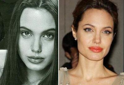Анжелина Джоли до пластики лица