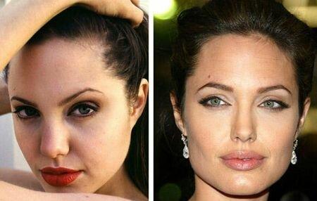 Джолли фото до и после пластики